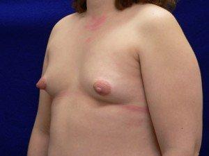 breast augment photos