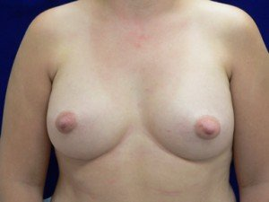 breast augment photos