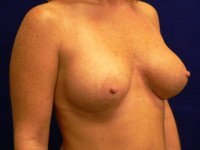 breast augmentation richmond va before and after photos