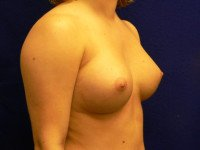 breast augmentation richmond va photos