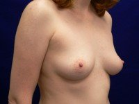 breast enlargement photos