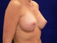 photograpghs breast implant rupture leak