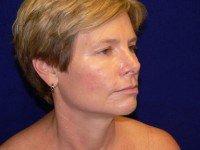 facelift face lift rhytidectomy photographs