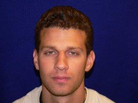 nose-surgery-rhinoplasty-photos-P1000730