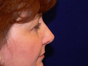 nose surgery rhinoplasty photos