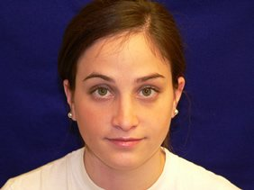 nose surgery rhinoplasty photos