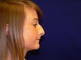 rhinoplasty nose surgery richmond virginia photos