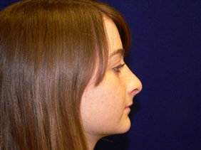 rhinoplasty nose surgery richmond virginia photos