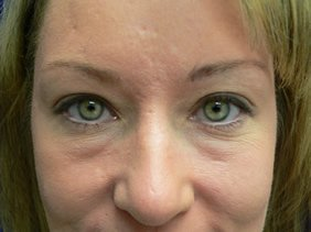 photos surgery eyelids blepharoplasty