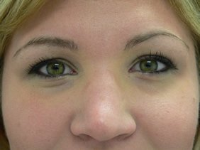 photos surgery eyelid blepharoplasty