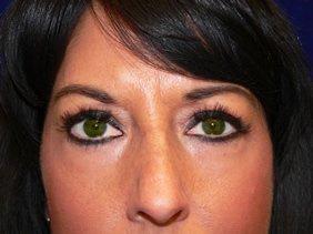 photos surgery eyelid blepharoplasty