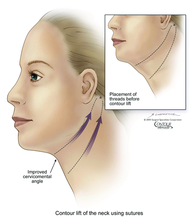 thread-lift-neck