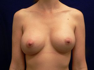 bottoming out breast implants malposition