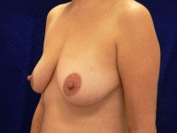 breast lift mastopexy benelli lollipop anchor photo