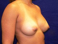 double bubble bottoming out breast implants malposition