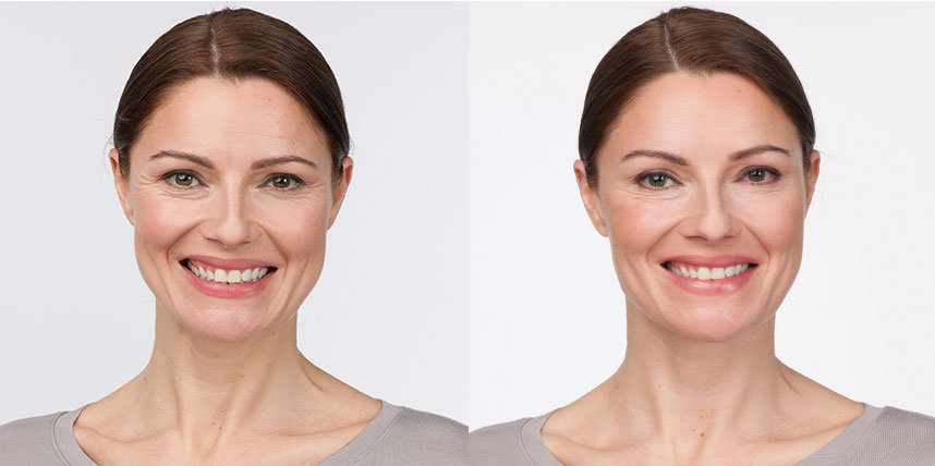 Botox Before After Photo Crow's Feet Richmond Virginia