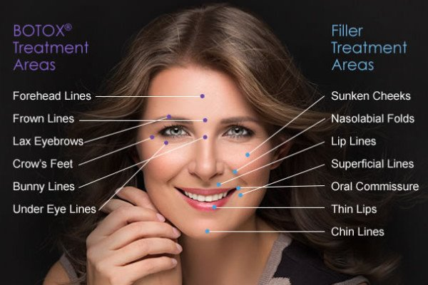 Fillers Last Longer with Botox