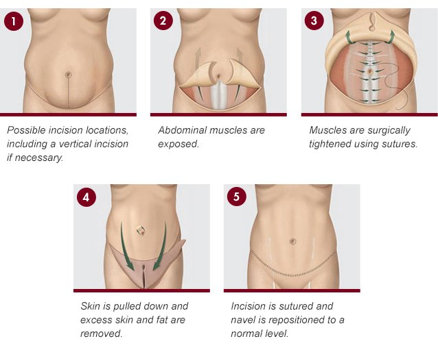 Tummy Tuck Richmond VA Procedure DeConti
