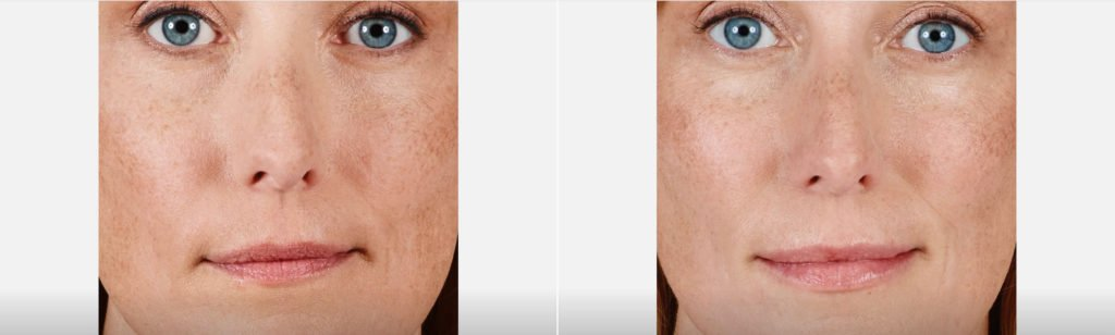 Juvederm Lips Filler Richmond Virginia