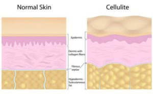 Cellulite Anatomy