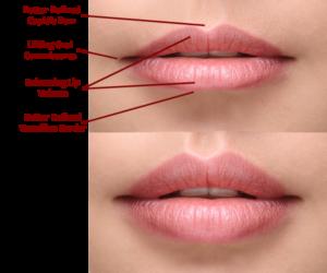 Volbella Lips Perioral Lines