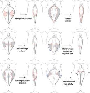 Labiaplasty Surgery Techniques