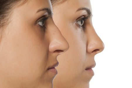 "30 Minute Nose Job * The ""Liquid Rhinoplasty"" with Dermal Fillers"