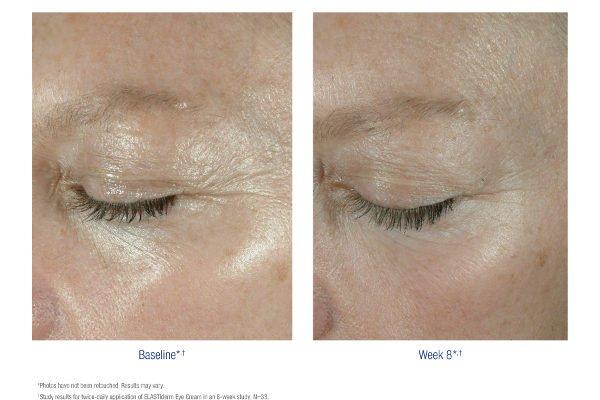 Obagi Elastiderm Eye Cream and Serum – 20% Off