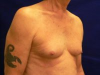 Transgender Breast Augment Before Photo