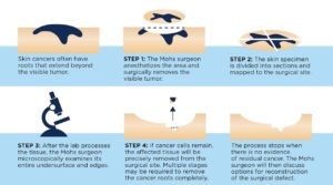 Mohs Surgery Skin Cancer Procedure