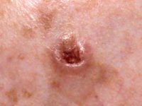 Basal Cell Skin Cancer Photo