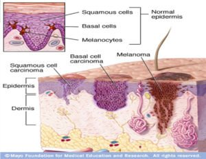 Skin Cancer Cell Layers