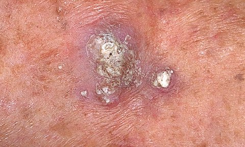 Squamous Cell Carcinoma Of The Skin Details And Appearance